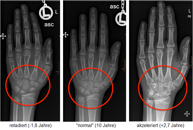 Abbildung: Handwurzel